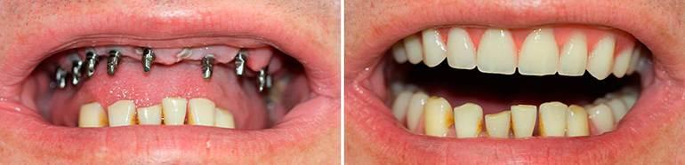 Имплантация зубов в Минске, стоимость имплантанта зуба
