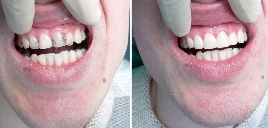 виниры на зубы в екатеринбурге
