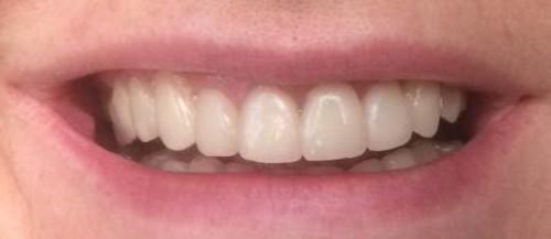 Эстетическая реставрация фронтальной группы зубов