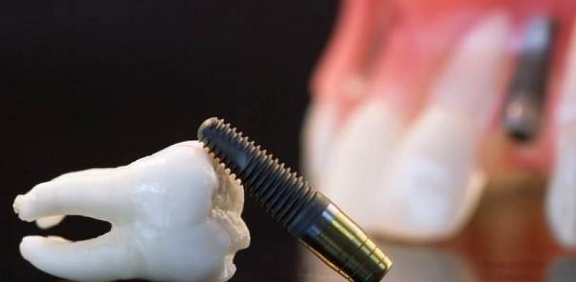 Акция от стоматологической клиники «Мона Лиза Дентал»: 2 этапа имплантации по цене одного! Спешите!