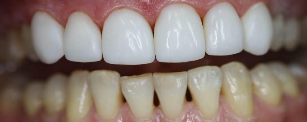 виниры на зубы в ростове